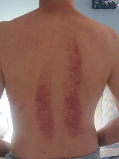 red marks from massage